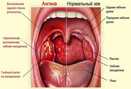 ангина у взрослого