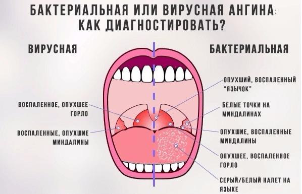 вирусная ангина